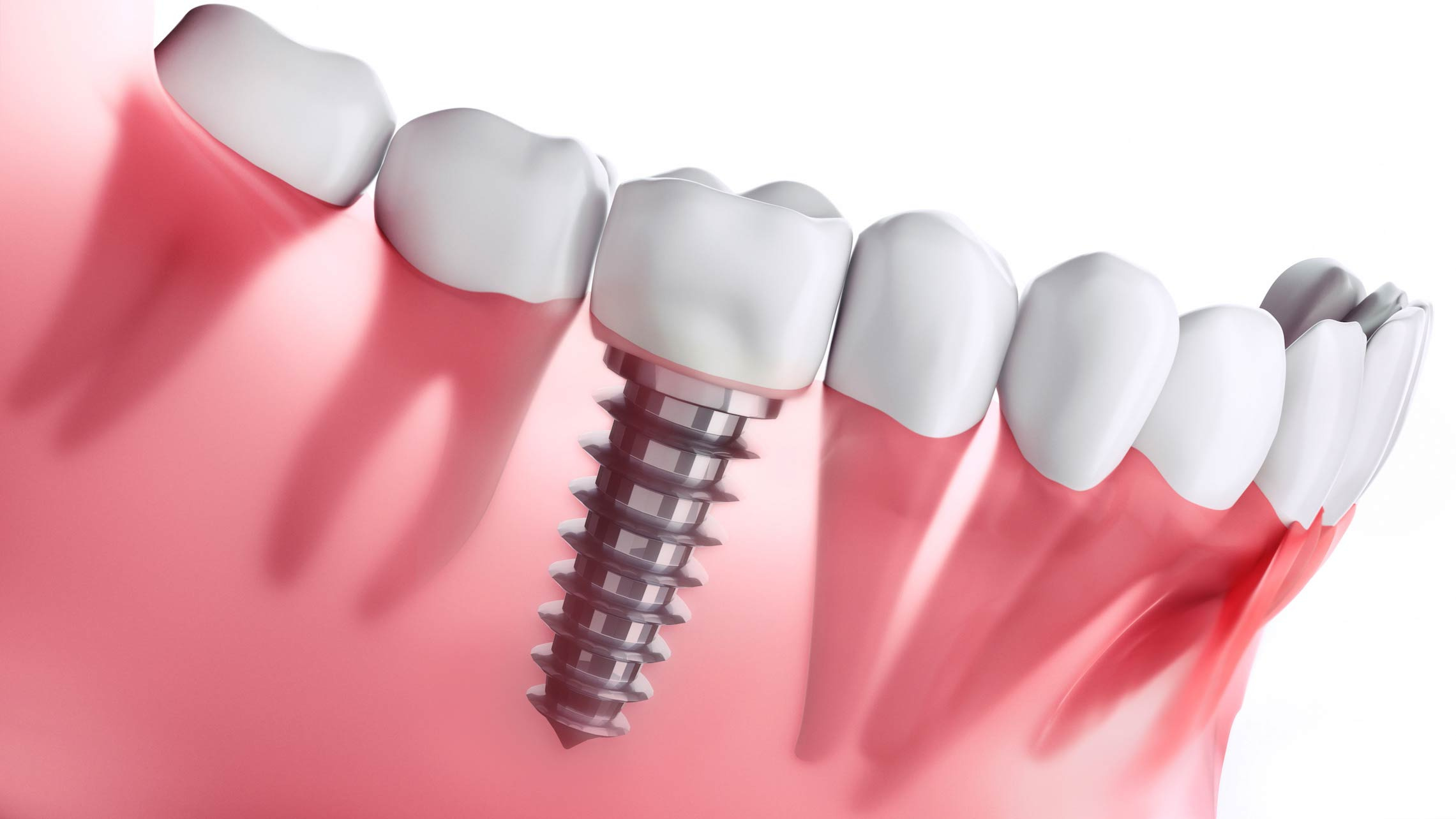 EXCLUSIVE DISTRIBUTOR  for a GLOBAL DENTAL IMPLANT AND BONE GRAFT MATERIAL